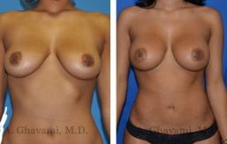 breast-augmentation-p5-001