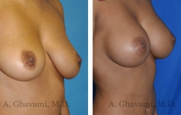 breast-augmentation-p5-002