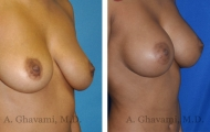 breast-augmentation-p5-002