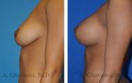 breast-augmentation-p5-003