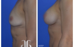 Breast-Augmentation-p36-01