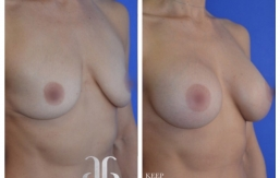 Breast-Augmentation-p36-02