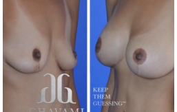 Breast-Augmentation-p37-01