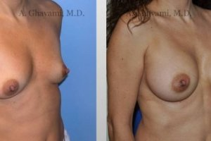 breast-augmentation-beverly-hills-2