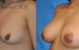 quick-recovery-breast-augmentation-beverly-hills_2