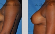 quick-recovery-breast-augmentation-beverly-hills_1
