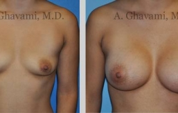 quick-recovery-breast-augmentation-beverly-hills_5
