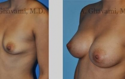 quick-recovery-breast-augmentation-beverly-hills_6