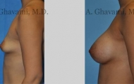 quick-recovery-breast-augmentation-beverly-hills_7