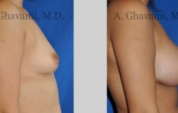 quick-recovery-breast-augmentation-beverly-hills_10