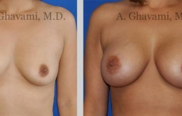 quick-recovery-breast-augmentation-beverly-hills_8