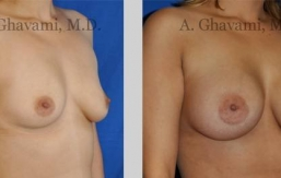 quick-recovery-breast-augmentation-beverly-hills_9