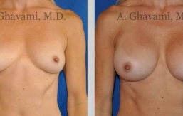 quick-recovery-breast-augmentation-beverly-hills_11