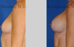 quick-recovery-breast-augmentation-beverly-hills_12