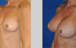 quick-recovery-breast-augmentation-beverly-hills_13