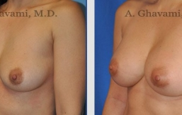 breast-augmentation-beverly-hills-3