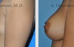 breast-augmentation-beverly-hills-1