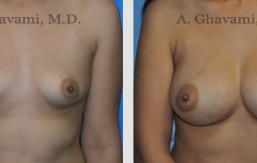 breast-augmentation-beverly-hills-2