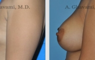 breast-augmentation-beverly-hills-1