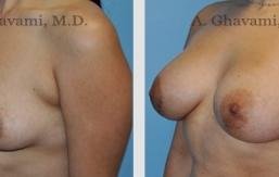 breast-augmentation-beverly-hills-3