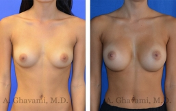 breast-augmentation-p4-001