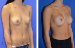 breast-augmentation-p4-002