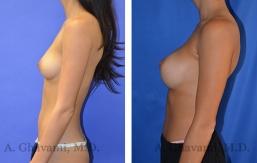 breast-augmentation-p4-003