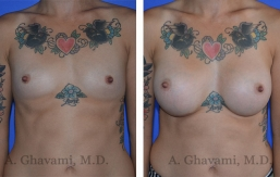 breast-augmentation-p3-001