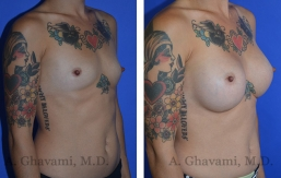 breast-augmentation-p3-002
