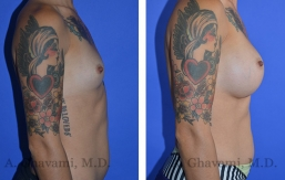 breast-augmentation-p3-003