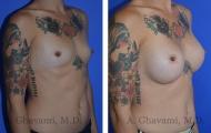 breast-augmentation-p3-002