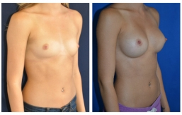 breast-augmentation-p2-002