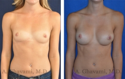 breast-augmentation-p2-001