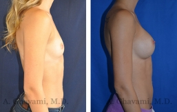 breast-augmentation-p2-003