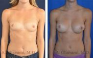 breast-augmentation-p2-001