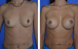 breast-augmentation-p1-001
