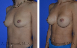 breast-augmentation-p1-002