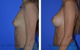 breast-augmentation-p1-003