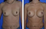 breast-augmentation-p1-001
