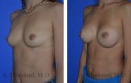 breast-augmentation-p1-002