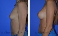 breast-augmentation-p1-003