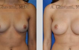 quick-recovery-breast-augmentation-beverly-hills_14