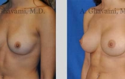 quick-recovery-breast-augmentation-beverly-hills_15