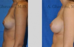 quick-recovery-breast-augmentation-beverly-hills_16