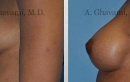 breast-augmentation-beverly-hills22