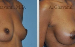 breast-augmentation-beverly-hills23