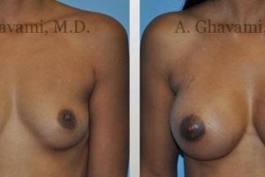 breast-augmentation-beverly-hills21