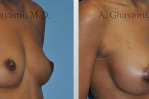 breast-augmentation-beverly-hills23