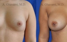 breast-augmentation-beverly-hills24