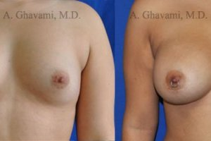 breast-augmentation-beverly-hills24